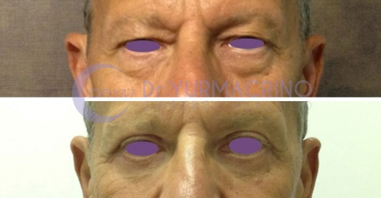 Blepharoplasty – Case 15/A