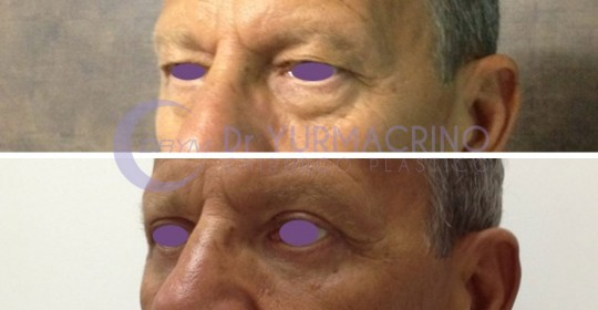 Blepharoplasty – Case 15/B