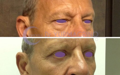 Blepharoplasty – Case 15/C