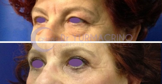 Blepharoplasty – Case 16/B
