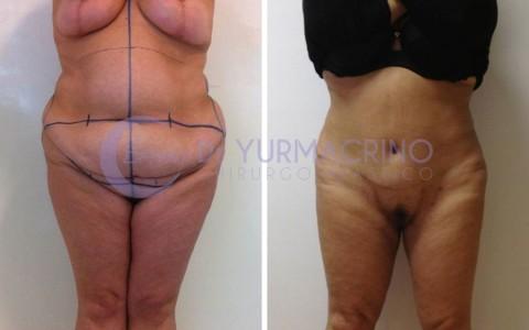 Combined Surgery – Case 4/C