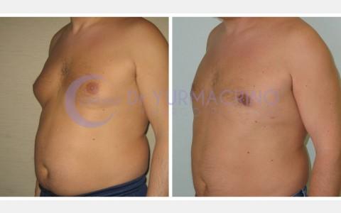 Gynecomastia – Case 1/B