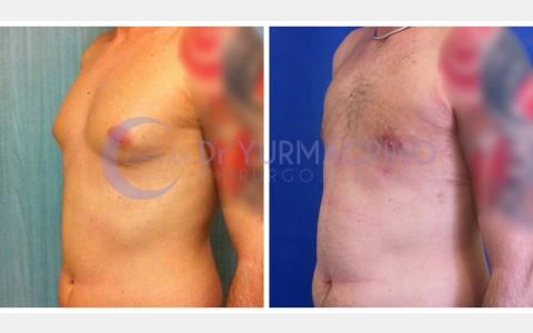 Gynecomastia – Case 2/B