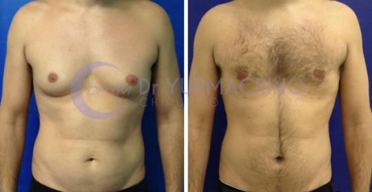Gynecomastia – Case 3/A