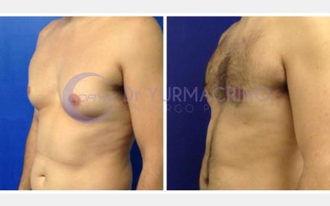 Gynecomastia – Case 3/B