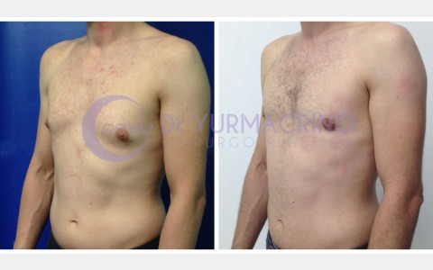 Gynecomastia – Case 4/B