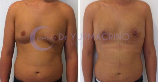 Gynecomastia – Case 5/A