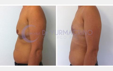 Gynecomastia – Case 5/C
