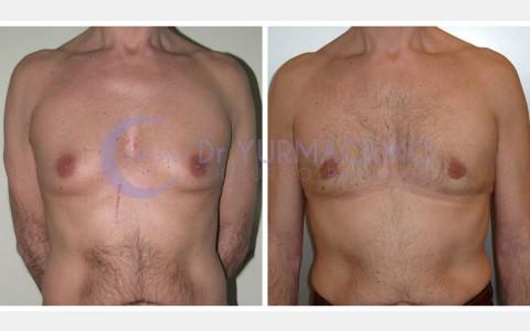 Gynecomastia – Case 7/A