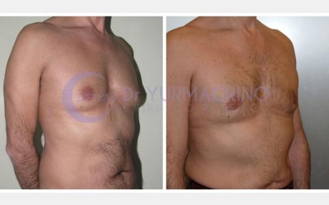 Gynecomastia – Case 7/B