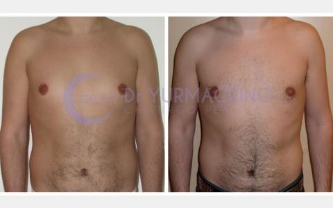 Gynecomastia – Case 9/A