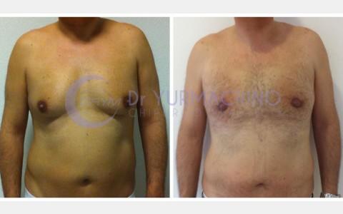 Gynecomastia – Case 10/A