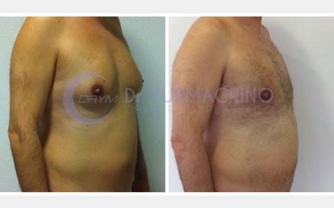 Gynecomastia – Case 10/B