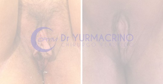 Genital Surgery – Case 1