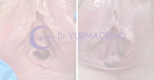 Chirurgia Intima – Caso 2