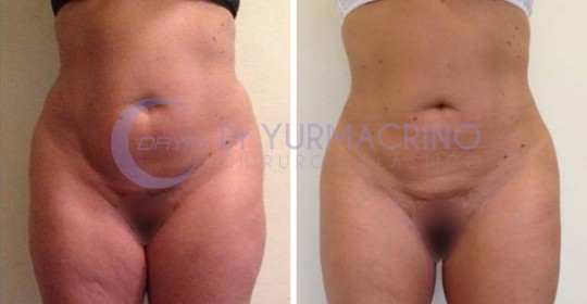 Abdomen/Hips Liposculpture – Case 2/A