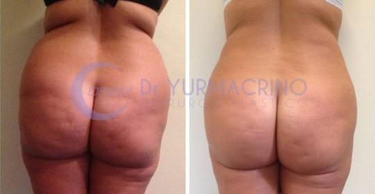 Abdomen/Hips Liposculpture – Case 2/B