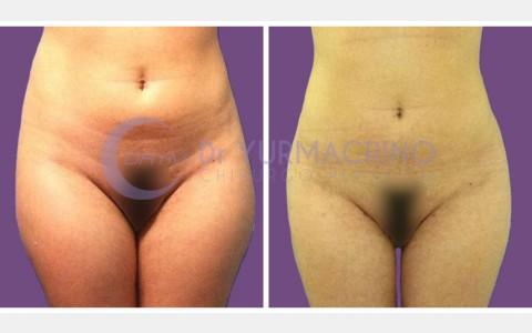 Abdomen/Hips Liposculpture – Case 5/A