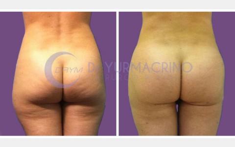 Abdomen/Hips Liposculpture – Case 5/B