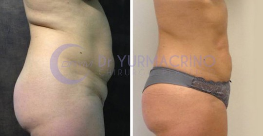 Abdomen/Hips Liposculpture – Case 8/B