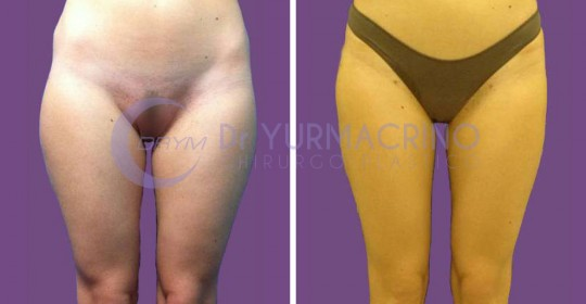 Legs/Buttocks Liposculpture – Case 1/A