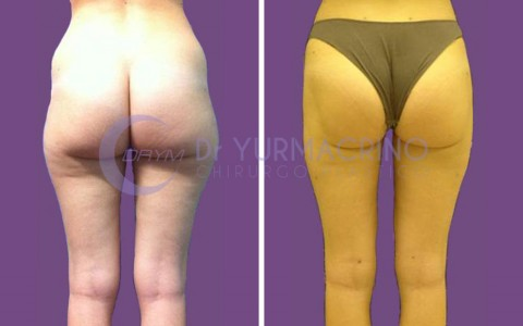 Legs/Buttocks Liposculpture – Case 1/B