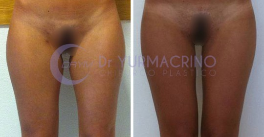 Legs/Buttocks Liposculpture – Case 3/A