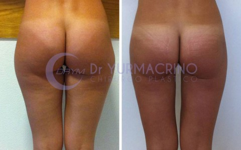 Legs/Buttocks Liposculpture – Case 3/B