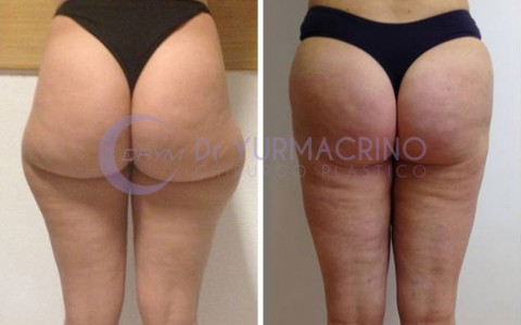Legs/Buttocks Liposculpture – Case 4/B