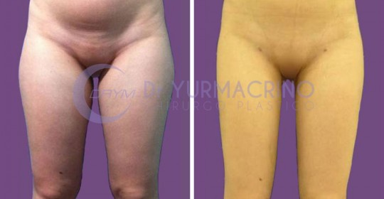 Legs/Buttocks Liposculpture – Case 5/A