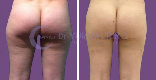 Legs/Buttocks Liposculpture – Case 5/B