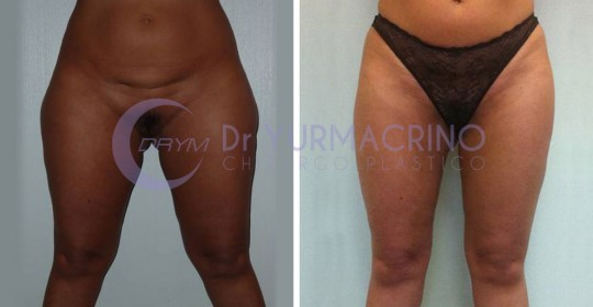 Legs/Buttocks Liposculpture – Case 6/A