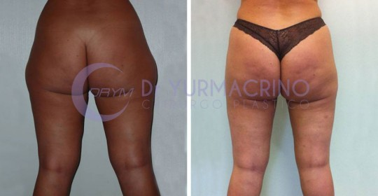 Legs/Buttocks Liposculpture – Case 6/B