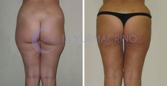 Legs/Buttocks Liposculpture – Case 7/B