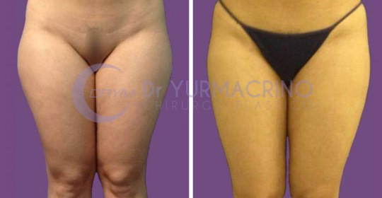 Legs/Buttocks Liposculpture – Case 8/A