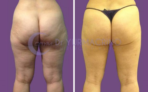 Legs/Buttocks Liposculpture – Case 8/B