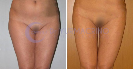 Legs/Buttocks Liposculpture – Case 9/A