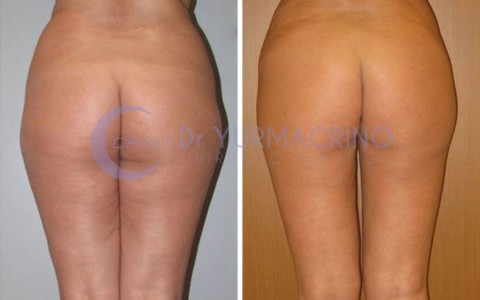Legs/Buttocks Liposculpture – Case 9/B