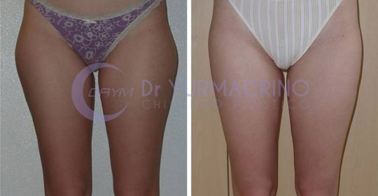 Legs/Buttocks Liposculpture – Case 10/A