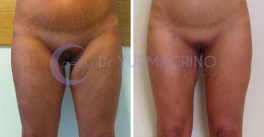 Legs/Buttocks Liposculpture – Case 11/A