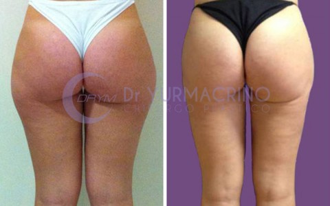 Legs/Buttocks Liposculpture – Case 13/B