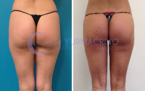 Legs/Buttocks Liposculpture – Case 14/B