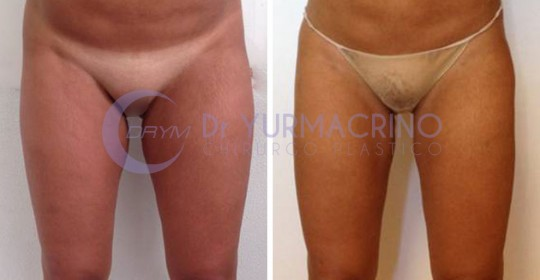 Legs/Buttocks Liposculpture – Case 15/A