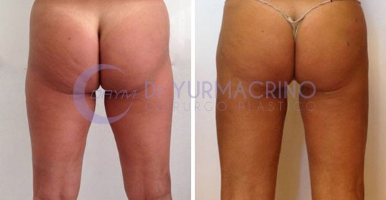 Legs/Buttocks Liposculpture – Case 15/B