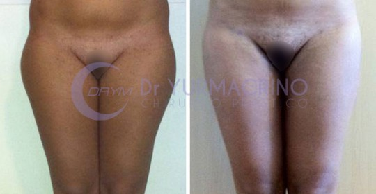Legs/Buttocks Liposculpture – Case 16/A