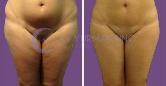 Legs/Buttocks Liposculpture – Case 17/A