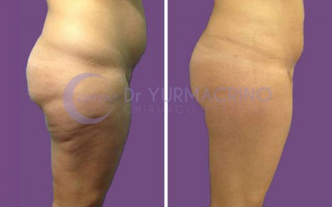 Legs/Buttocks Liposculpture – Case 17/B