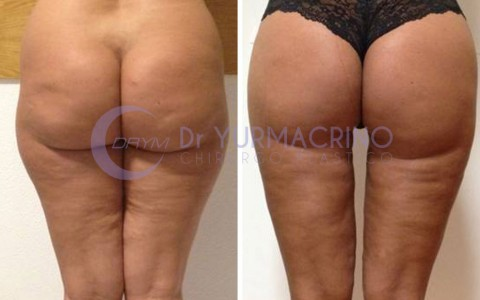 Legs/Buttocks Liposculpture – Case 18/B