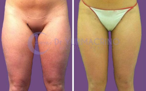 Legs/Buttocks Liposculpture – Case 19/A