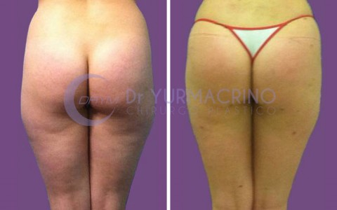 Legs/Buttocks Liposculpture – Case 19/B